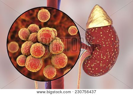 Pyelonephritis, Medical Concept, And Close-up View Of Bacteria Staphylococcus, The Common Causative