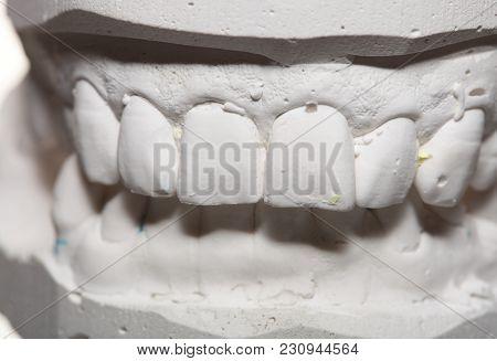 Dental Casting Gypsum Model Plaster Cast Stomatologic Human Jaws Prothetic Laboratory, Technical Sho