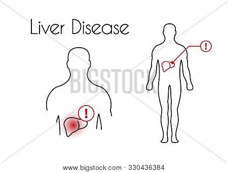 Liver Disease Linear Icon. Vector Minimal Illustration Of Young Man With Red Spot On His Liver Suffe