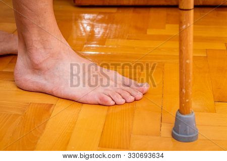 Disabled Man's Barefoot With Walking Stick On Parquet