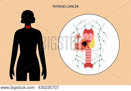 Thyroid Cancer Stage In Female Body. Thyroid Gland, Trachea And Lymph Nodes Concept. Neoplasm, Infla
