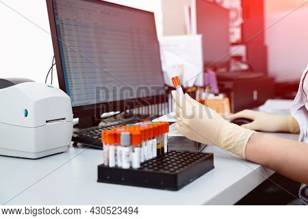 Assistant In Gloves Analyzing Blood Samples. Scientist Working With Blood Results.