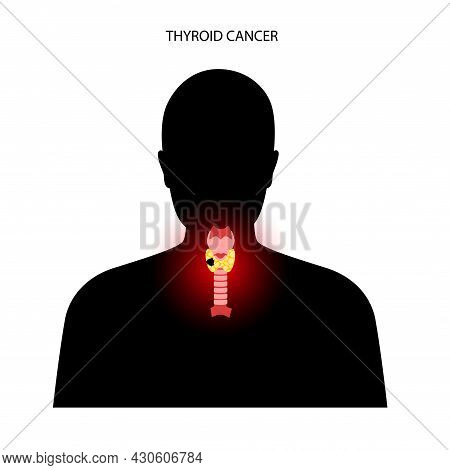 Thyroid Cancer Stage In Male Body. Thyroid Gland, Trachea And Lymph Nodes Concept. Neoplasm, Inflamm