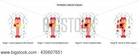 Thyroid Cancer Stages Anatomical Poster. Thyroid Gland, Trachea, And Lymph Nodes Concept. Neiolasm,