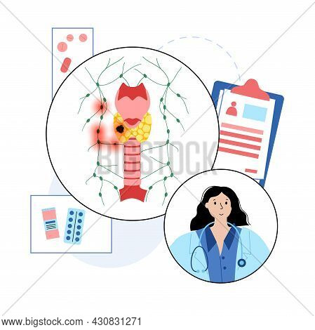 Thyroid Cancer Stages. Doctors Consultation And Treatment In Clinic. Thyroid Gland, Trachea And Lymp