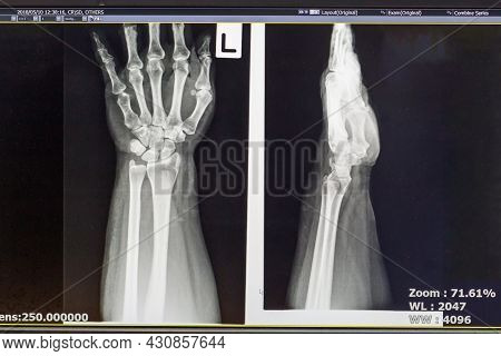 The Foot Problem Point On X-ray Film. X-ray Film Show Skeleton Knee On Film. Surgery Medical Technol