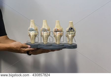 Doctor Show Anatomical Model Of Knee Displaying Progression Of Knee Osteoarthritis Which Ending Up I