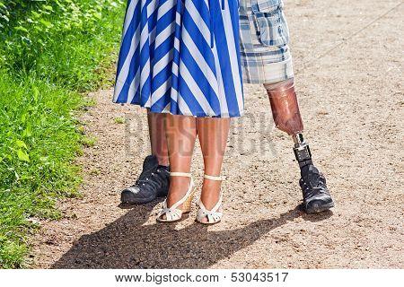 View Of A Man Wearing A Prosthetic Leg