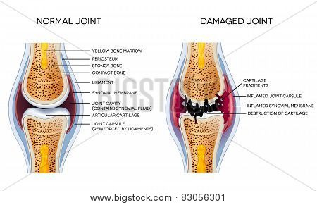 Damaged joint and healthy joint detailed diagram poster
