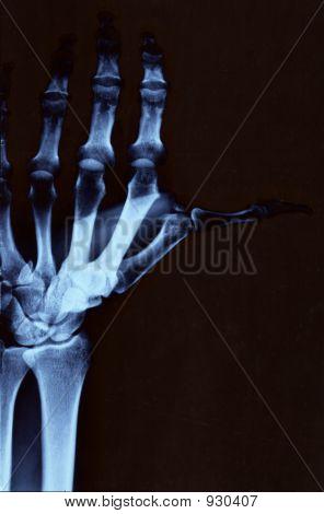 Hand Radiography