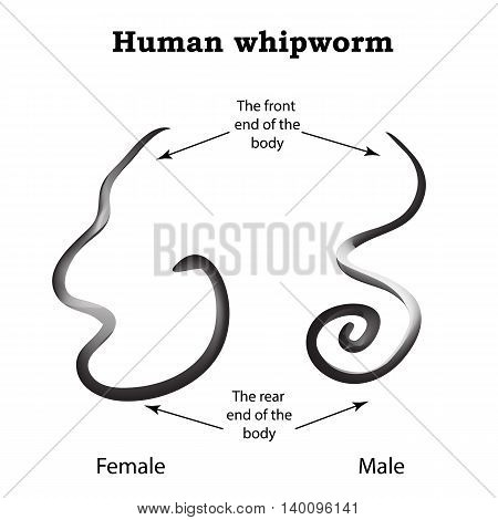 Whipworm. Structure whipworm females. The structure of the male whipworm. Infographics. Vector illustration on isolated background.