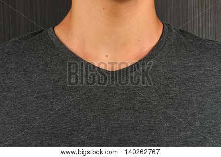 Caucasian Young Man In Grey T-shirt With A Birthmark On His Neck On Dark Background With Copy Space