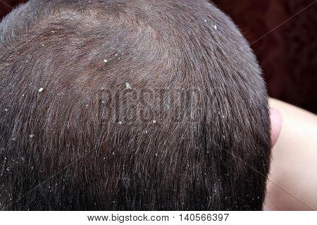 Dandruff In The Hair