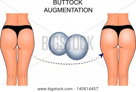 illustration of buttock augmentation.  silicone implant, plastic surgery