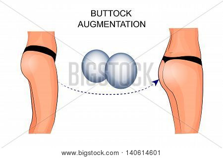 illustration of buttock augmentation. plastic surgery. silicone implant