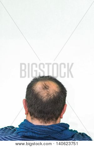 Mature man seen from behind in the head begins to lose hair he begins to be old.
