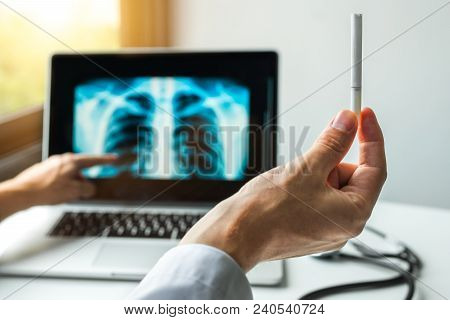 Doctor Holding A Cigarette And Showing X-ray Of Lungs. Lungs Cancer Prevention Concept With Light