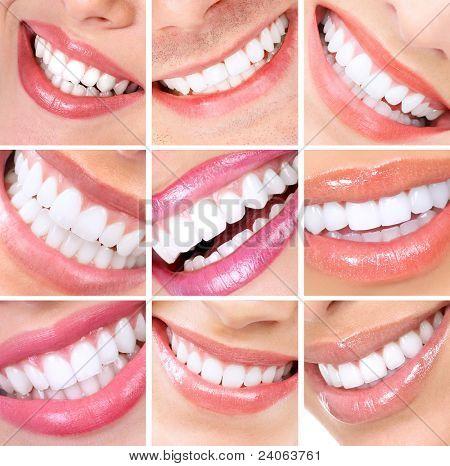 Lächelnden Frau Mund mit gesunden Zähnen. Collage.