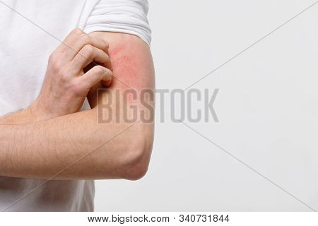 Close Up Of Male Scratching The Itch On His Hand, Isolated On Grey Background, Copy Space. Pruritus,