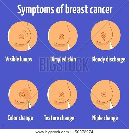 Breast cancer symptoms. Vector illustration. Different symptoms of breast cancer.