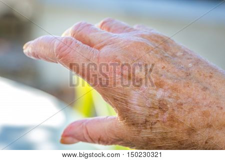 Hands Of Old Woman With Skin Problems