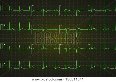 Typical human electrocardiogram bright green graph on dark background with marks