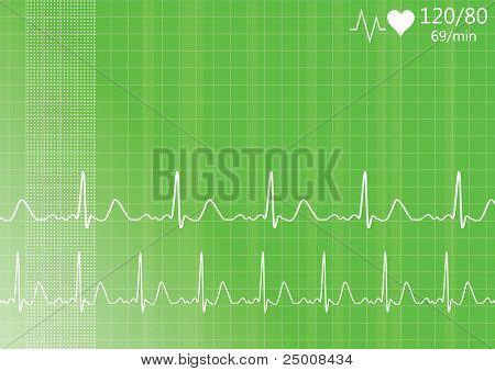 Heart monitor. Vector. poster
