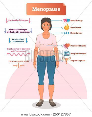 Menopause Labeled Vector Illustration. Medical Scheme And Diagram With List Of Estrogen, Ovaries, Te