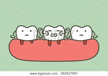 Periodontitis Or Gum Disease With Bleeding ( Blood Flow Come From Gum And Tooth ), Dental Problem -