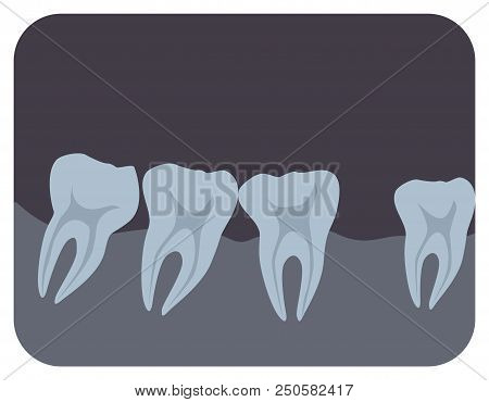 Intraoral Radiograph Of Human Teeth And Gingiva. Dental X-ray Picture Or Radiographic Monitor Image,