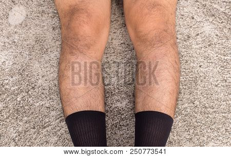 Asian man bandy-legged shape of the legs,Physiological bow leg,Close up poster
