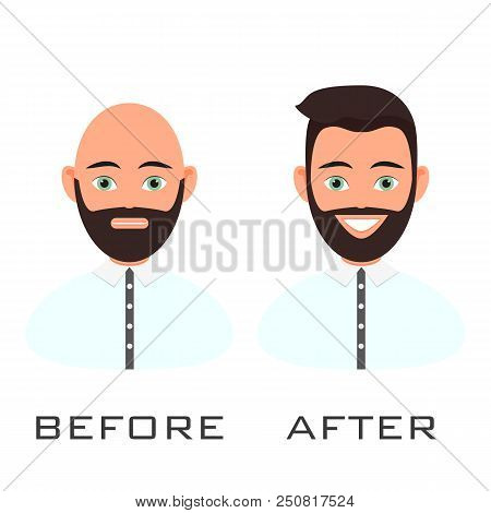 Man with alopecia problem before and after hair treatment and transplantation. Male baldness set in cartoon style. Perfect for clinics and diagnostic centers. poster