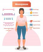 Menopause labeled vector illustration. Medical scheme and diagram with list of estrogen, ovaries, testosterone and progesterone symptoms. Anatomical explanation set of mood swings, libido and periods. poster