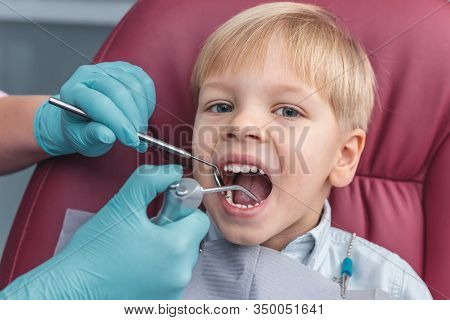 Portrait Of Happy Young Boy With Open Mouth Sitting In Dental Chair, Dentist Holding In Hands In Blu