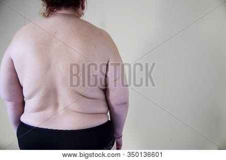 Fat Woman, Back View. European And American Fat Women Are Overweight. Shows Excess Waist Fat. He Wan