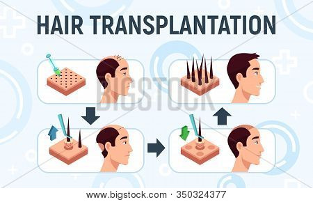 Vector Illustration Of A Hair Transplantation Procedure