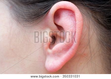 Girls Ear Closeup. Sore Red Ear From Allergies. Problems Associated With Auricle Disease.