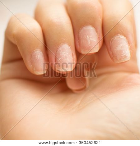Close Up Woman Nails After Bad Manicure On White Background. Overgrown Cuticle Fingernails And Taint
