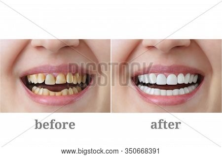 Dentistry. Treatment And Whitening Of Teeth, Dental Crowns. Before And After.