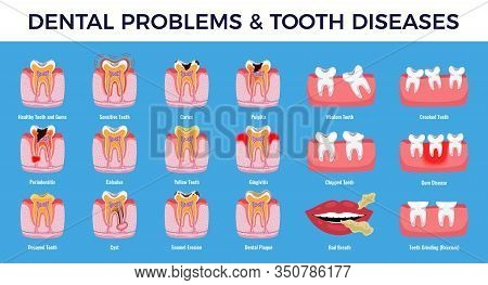 Dental Problems Educational Infographic Info Chart Set With  Caries Pulpit Inflammation Tooth Plaque