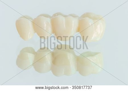 4 units zirconia bridge with all porcelain with a reflection on the glass.