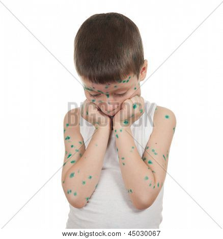sick child. chickenpox. isolated