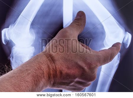 Doctor studying x-rays of the hand of the two knees