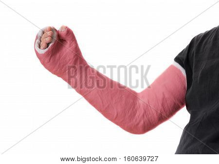 Young Man Wearing A Red Long Arm Plaster Fiberglass Cast