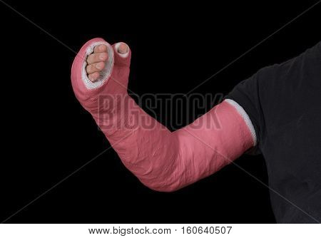 Red Long Arm Plaster Fiberglass Cast