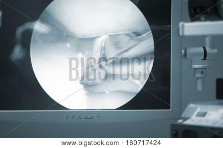 Arthroscopy Surgery Screen