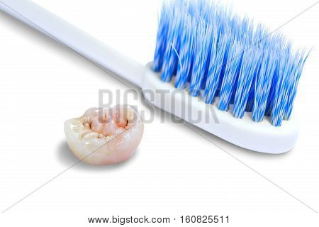 Tooth decay dental caries and tooth brush.