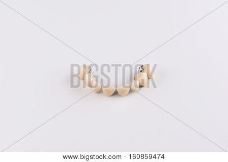 denture made of ceramics located on plaster model