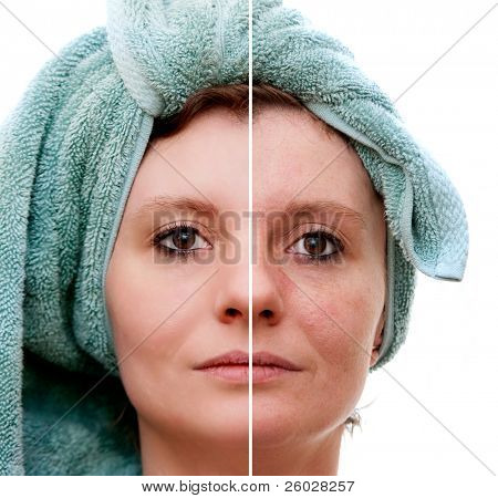 Woman with spotty skin with deep pores and blackhead and healed soft skin - before and after