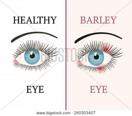 Barley Eye And Healthy Eye. Eye Disease. Ophthalmology Flat Health Vector Illustration.